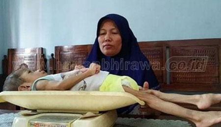 Derita Ahmad Fajar, Balita Gizi Buruk Asal Mojokerto